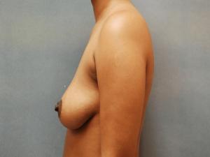 Manhattan Breast Augmentation Before 6